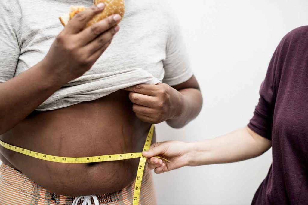 Obesidad Hereditaria